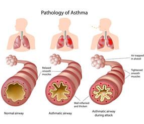 asthma-sm.jpg